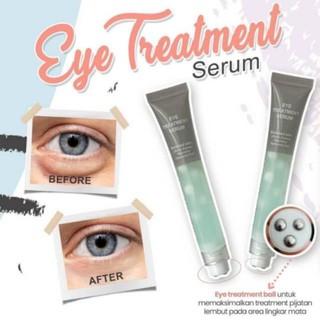 Eye treatment Msglow thumbnail