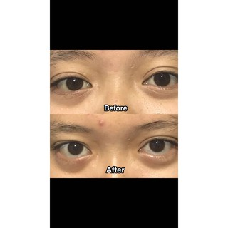 Bobebi eye mask magnetic masker mata BPOM 5