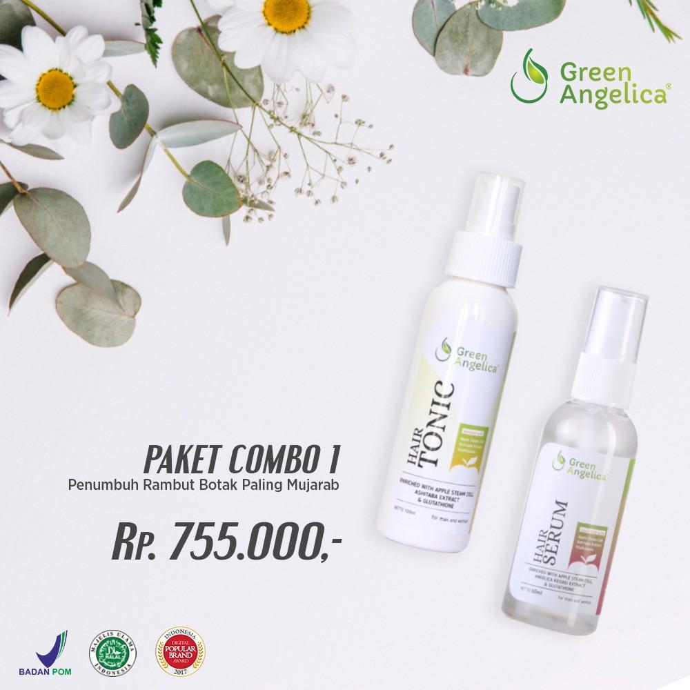 Perawatan Rambut Rontok Dan Botak Shampo Penumbuh Hair Dhianta Tonic Vitamin Shopee Indonesia