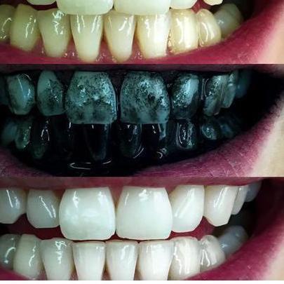 Hasil gambar untuk Cara Memutihkan Gigi Dirumah dengan arang aktif