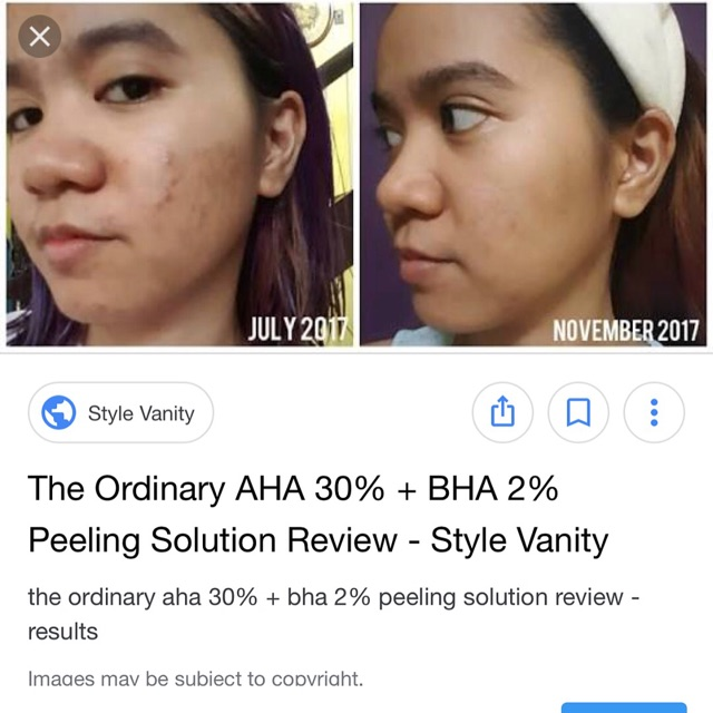 The Ordinary Aha 30 Bha 2 Peeling Solution Shopee Indonesia