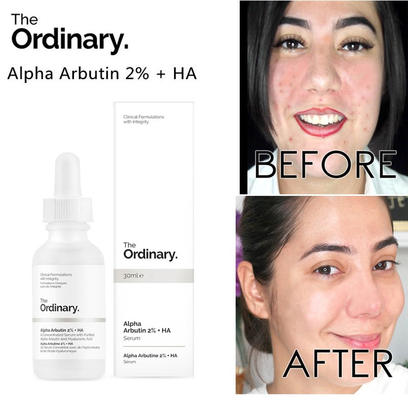 The Ordinary Alpha Arbutin 2 Ha 30ml Shopee Indonesia