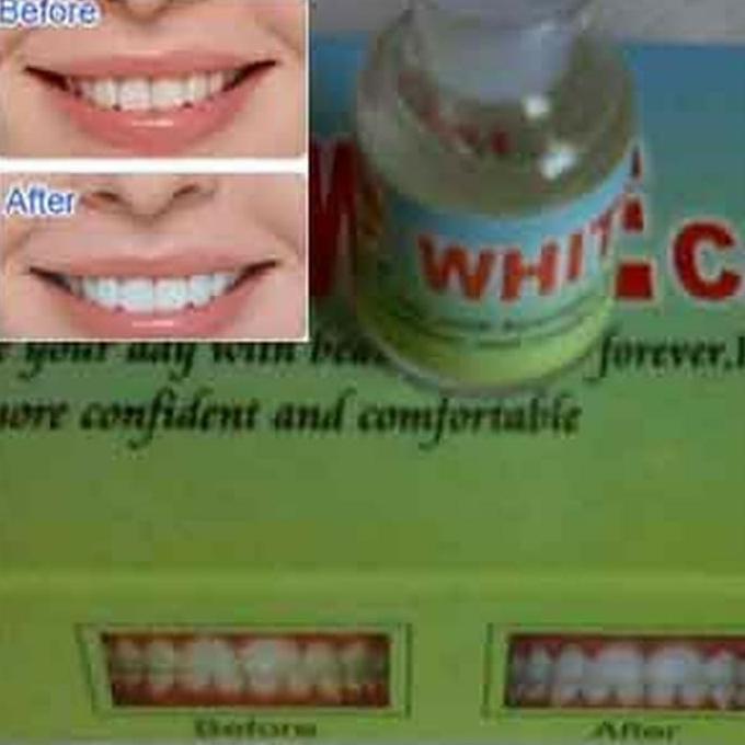 Obat Pemutih Gigi Alami Pemutih Gigi Kuning Hitam Penghilang Bau