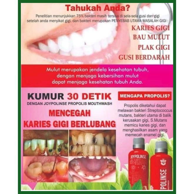 48+ Cara Agar Tidak Bau Mulut Karena Gigi Berlubang Terbaru
