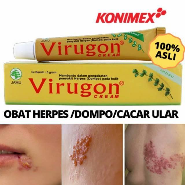 Salep Virugon Untuk Herpes Atau Dompo Atau Cacar Ular Shopee Indonesia