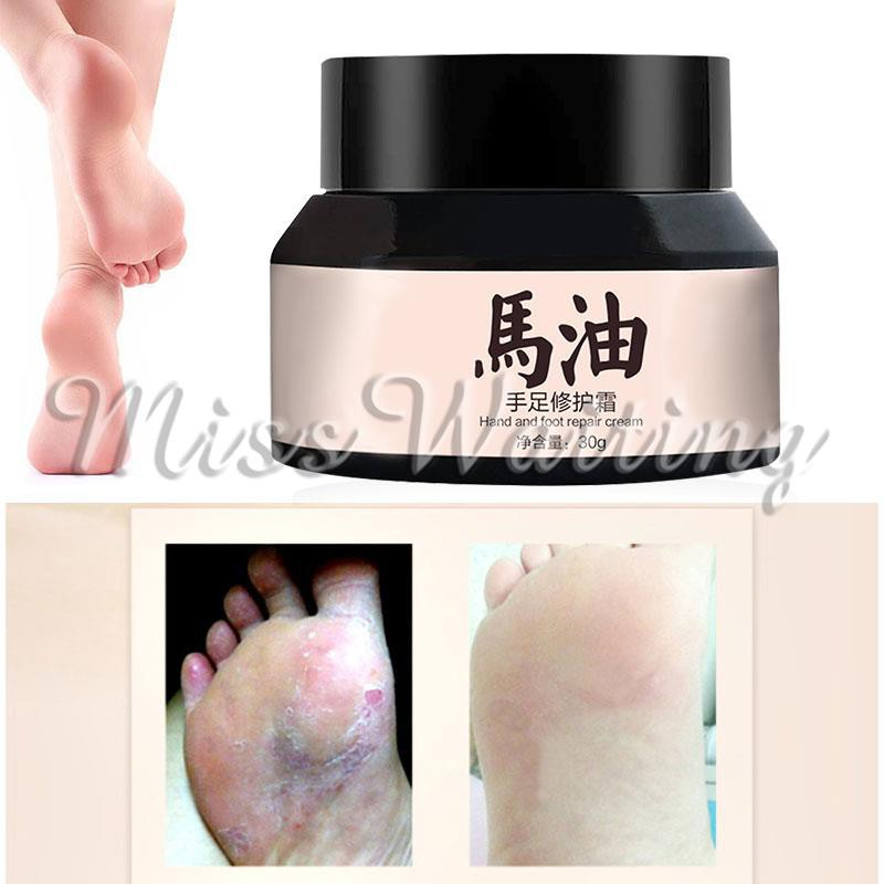 Foot Glue Ointment Cream