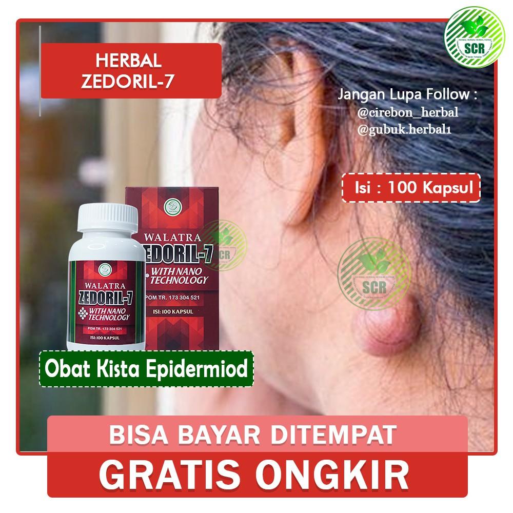 Obat Kista Epidermoid Obat Benjolan Kista Obat Benjolan Kista Epidermoid Herbal Zedoril 7 Shopee Indonesia