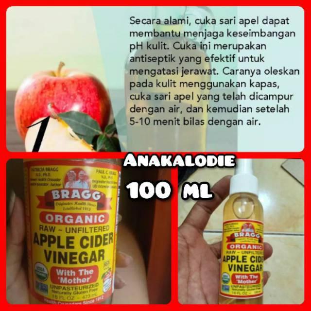 Cara Pakai Bragg Apple Cider Vinegar Untuk Jerawat