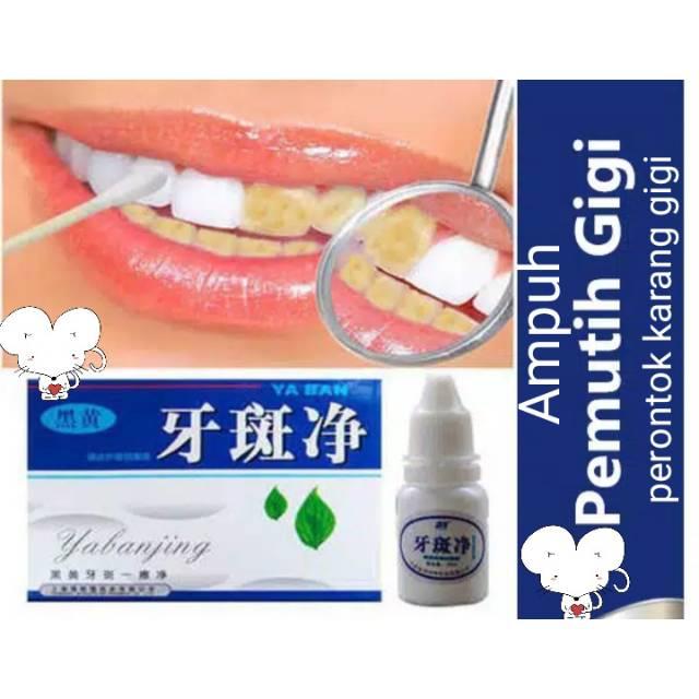 Yabanjing Whitening Teeth Pemutih Gigi Yang Ampuh Shopee Indonesia