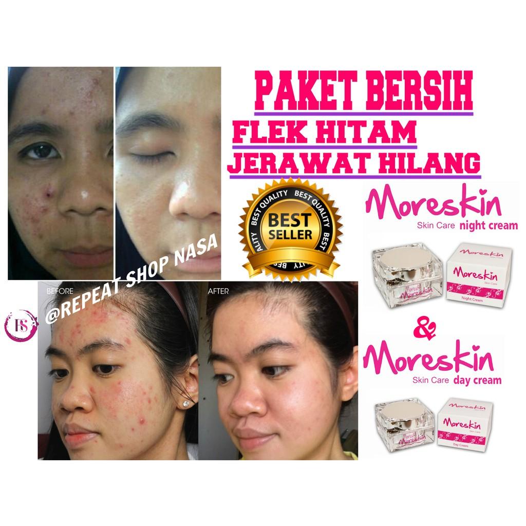 Bintik Hitam Wajah Susah Hilang Flek Hitam Bekas Jerawat Penghilang Flek Noda Hitam Bekas Jerawat Shopee Indonesia