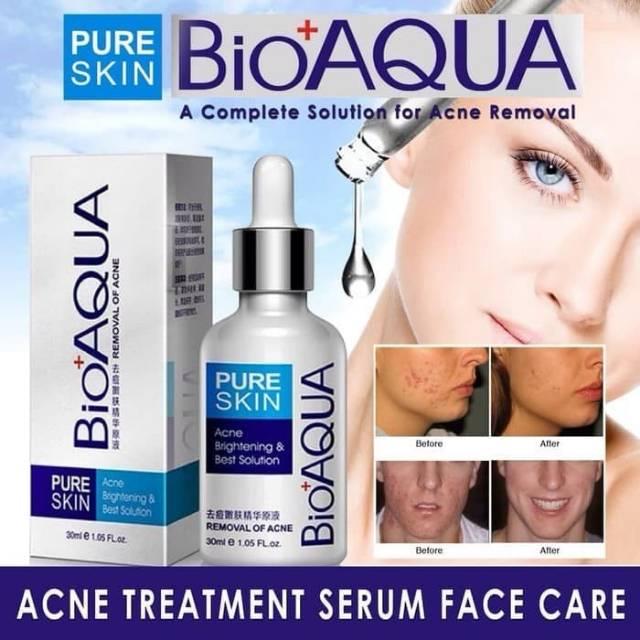 Bioaqua Serum Wajah Anti Jerawat Pure Skin Acne Removal Serum