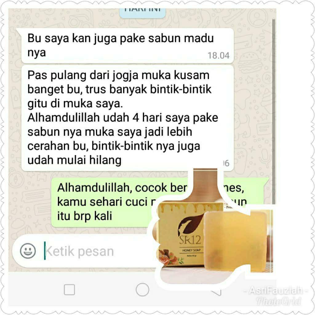 Sr12 Sabun Madu Bpom By Kalamlangit Honey Soap Pencerah Wajah Kulit Kering Manuka Propolis Shopee Indonesia