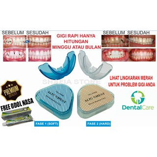 Premium Perapi Gigi Tanpa Behel / Teeth Trainer Alignment Dessa Dental USA ( Bonus Pasta Gigi Nasa )