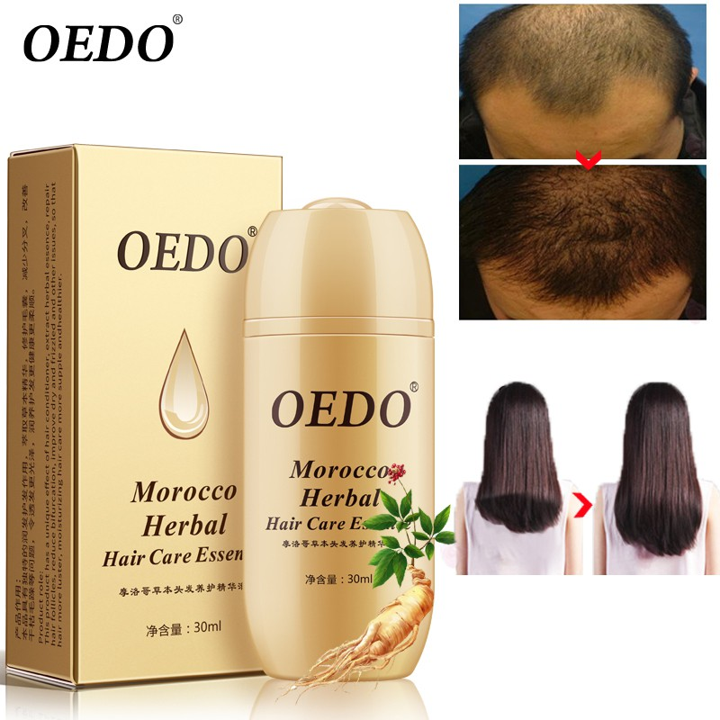 Perawatan Rambut Essence Treatment Hair Loss Repair Hair Fol Shopee Indonesia