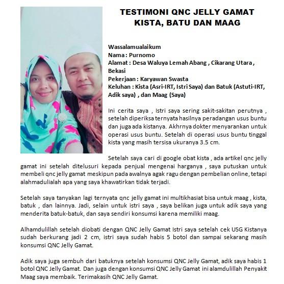 Cod Obat Kista Bartholin Di Apotik Menyembuhkan Kista Bartholin Secara Alami Dan Cepat Qnc Shopee Indonesia