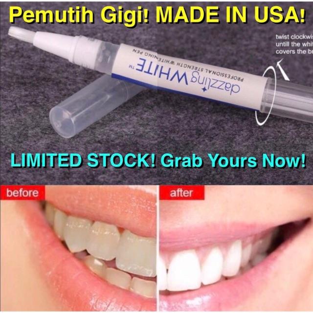 JCLEANING Alat Pembersih Lidah Tongue Cleaner Scraper Import Korea Anti Bau Mulut Kesehatan Lidah   Shopee