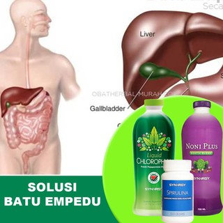 Sinusitis seca