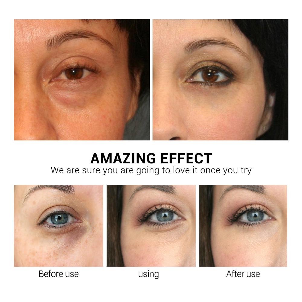 [Bayar Di Tempat]LANBENA Vitamin C Eye Masks 50pcs 4