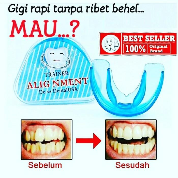 Special Promo Alat Perapih Gigi Behel Merapikan Gigi Teeth Trainer