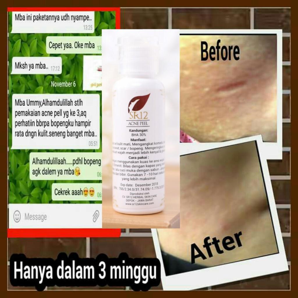 Acne Peel Sr12 Skincare Cream Krim Obat Penghilang Bopeng Scar Bekas Jerawat Ampuh Di Apotik Natasha Shopee Indonesia