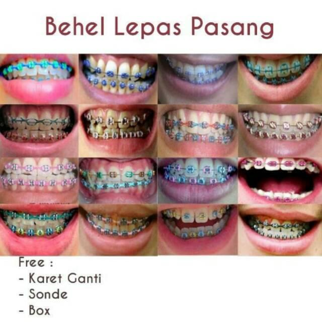 Behel Fashion Original Atas Saja   Behel Lepas Pasang   Kawat Gigi   Grosir  Behel   Supplier Behel  dd0fd296e5