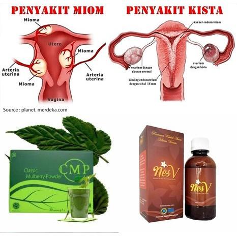 Obat Herbal Kista Miom Cmp Dan Nes V Ori Hwi Shopee Indonesia