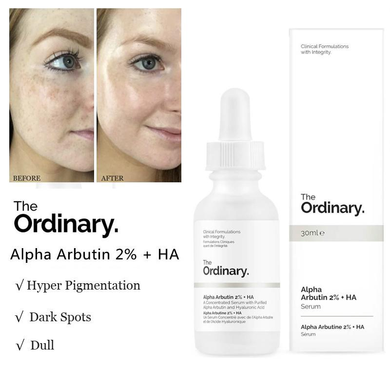 The Ordinary Alpha Arbutin 2 Ha 30ml Serum Pemutih Wajah Penghilang Noda Gelap Pigmentasi Shopee Indonesia
