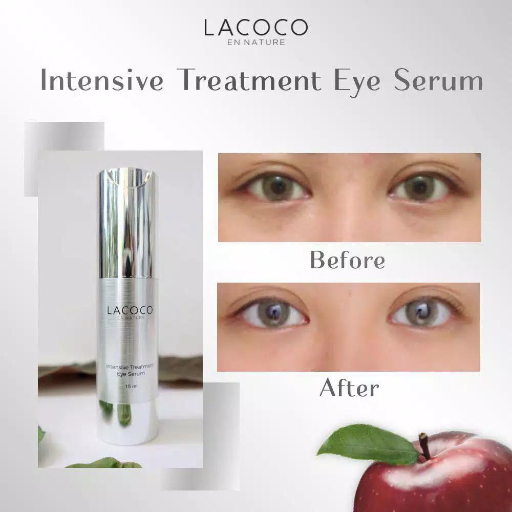 Lacoco intensive treatment eye seruma Original Penghilang mata panda Eye  cream anti aging | Shopee Indonesia