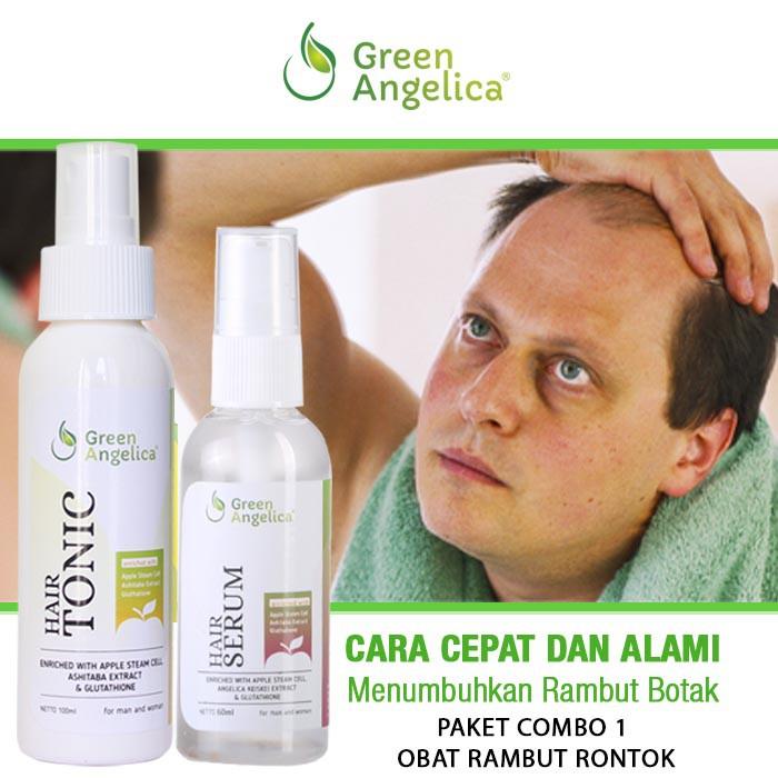 Penumbuh Rambut Rontok Parah Dan Botak Penumbuh Rambut Halal Dan Aman Bpom Indonesia Combo  Shopee Indonesia