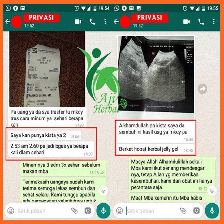 Obat Herbal Miom Dan Kista Tumor Rahim Polip Serviks Fibroid Rahim 100 Alami Qnc Jelly Gamat Shopee Indonesia