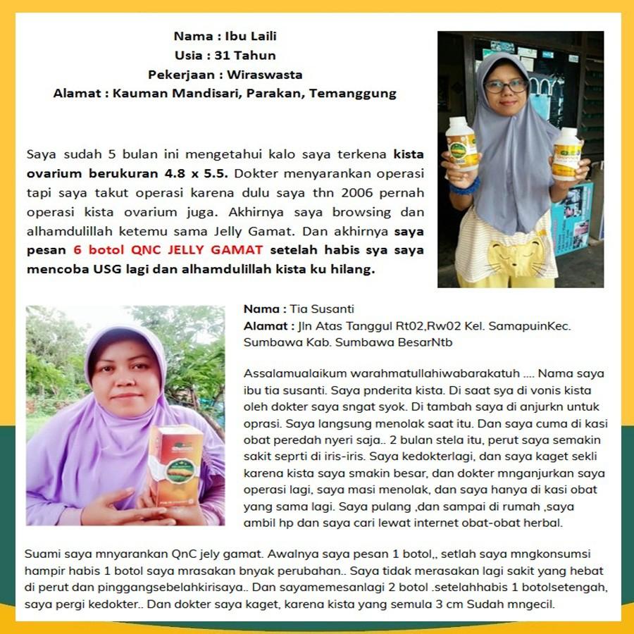 Obat Herbal Untuk Kista Ganglion Kista Ovarium Kista Ateroma Kista Dermoid Kista Baker Sebaseus Shopee Indonesia