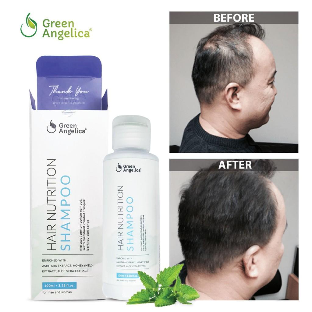 Shampo Penumbuhrambut Cepat Shampo Anti Ketombe Green Angelica 100 Ampuh Obat Rambutrontok Shopee Indonesia
