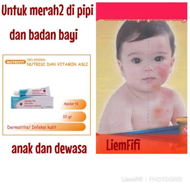 Apolar Untk Merah2 Di Pipi Badan Bayi Anak Dewasa Shopee Indonesia