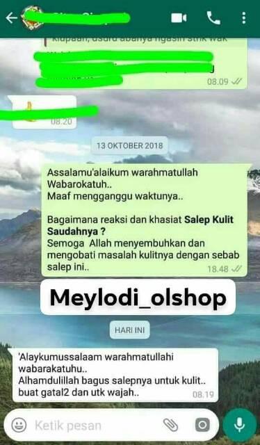 Produk Original Salep Saudah Herbal Salep Kulit Herbal Salep Kutu Air Kudis Panu Exim Jerawat Shopee Indonesia