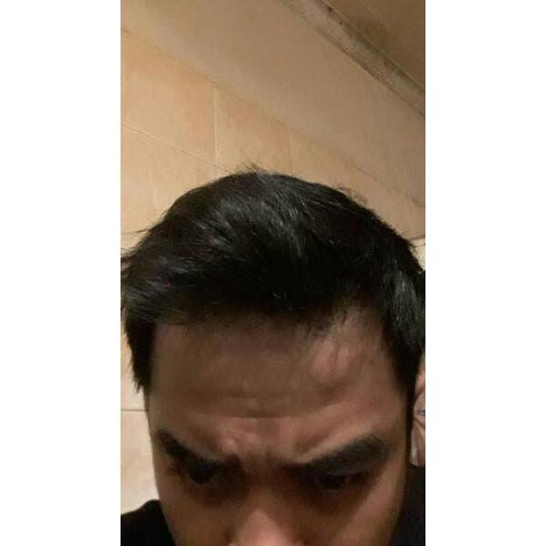 Hanya Jual Produk Ori Finasteride 1 Mg Isi 60 Capsul Blocker Dht Atau Kebotakan Turunan Finast Shopee Indonesia