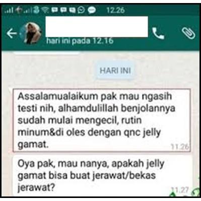 Obat Benjolan Di Tangan Obat Kista Ganglion Obat Kista Ateroma Obat Lipoma Qnc Jelly Gamat Asli Shopee Indonesia