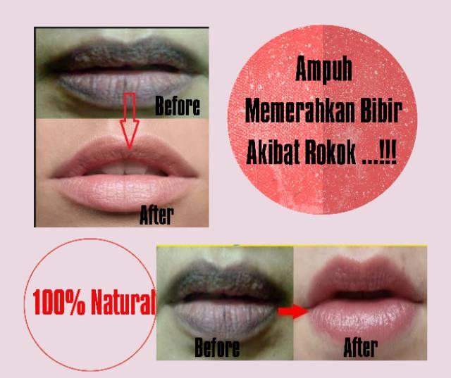 Krim Pemerah Bibir Akibat Rokok Shopee Indonesia