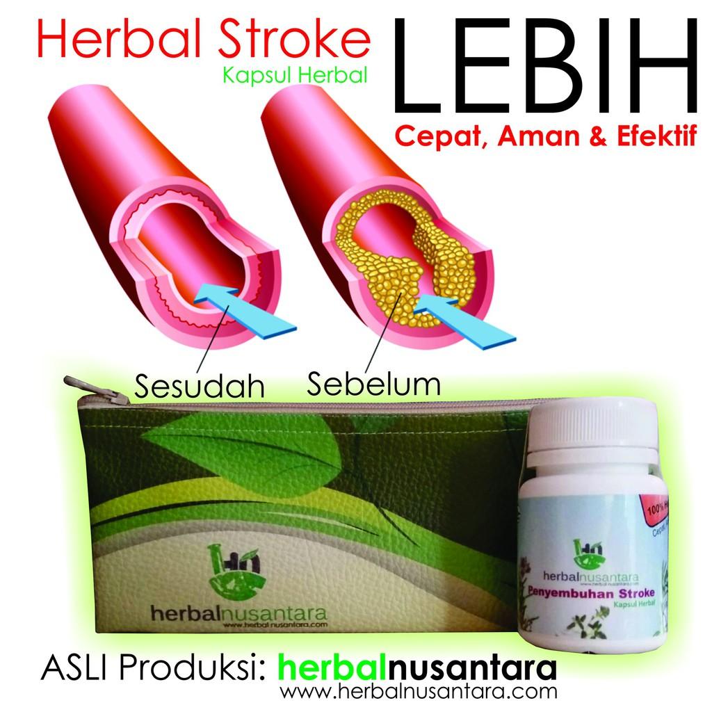 Angkung Angong Obat Stroke 100 Original Daftar Harga Penjualan Ankung Herbal Terampuh Ang Kung Ni Huang Wan Pt Purusa Bhakti Indonesia