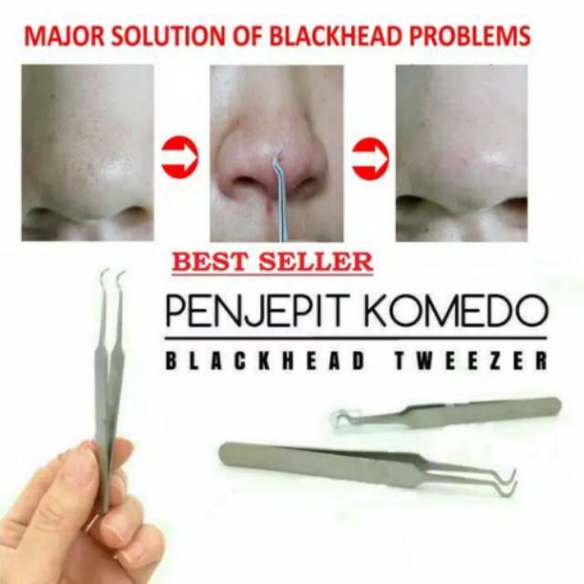 Pinset Komedo Alat Penjepit dan Pembersih Komedo Blackhead Tweezer   Shopee Indonesia