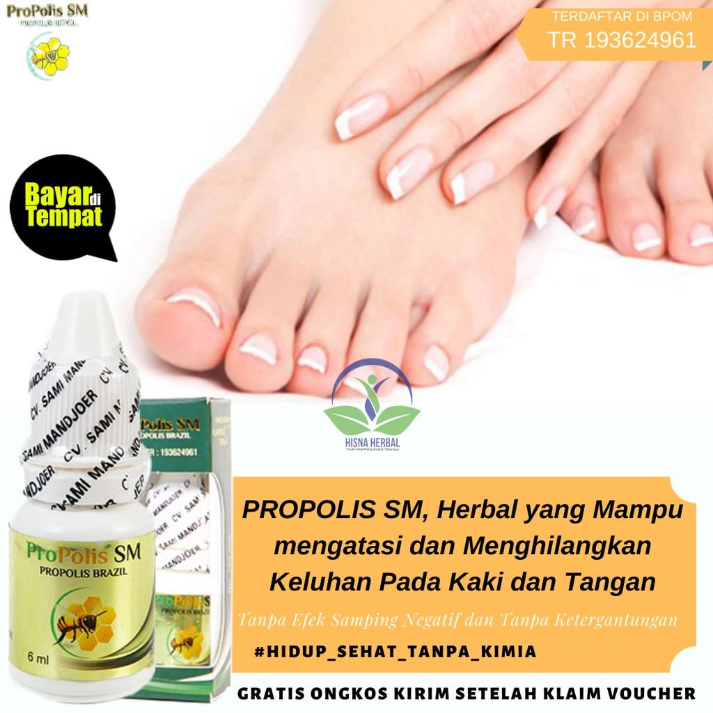 Obat Untuk Kaki Lecet Anti Luka Bernanah Karena Sepatu Akibat Jatuh Bengkak Dan Bergelembung Shopee Indonesia