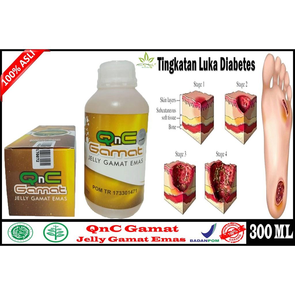 kegunaan belerang sebagai obat diabetes