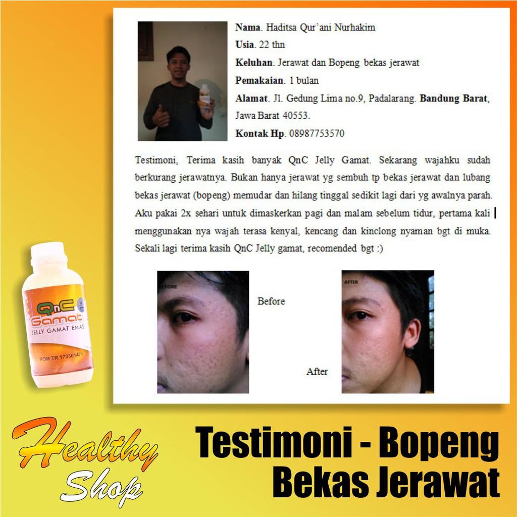 Review Jelly Gamat Untuk Bopeng
