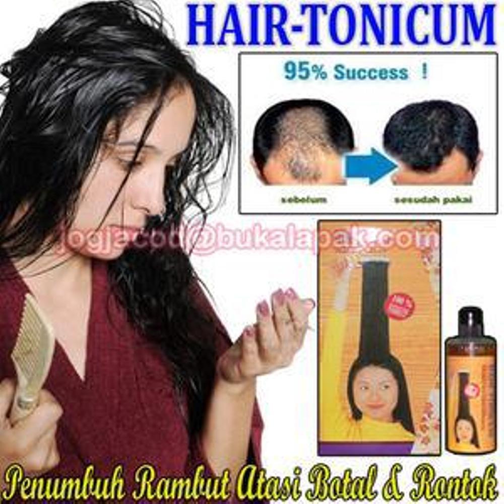 Obat Penumbuh Rambut Mengatasi Kebotakan Secara Alami Dan Cepat Alkatel Cara Menumbuhkan Rontok Shopee Indonesia