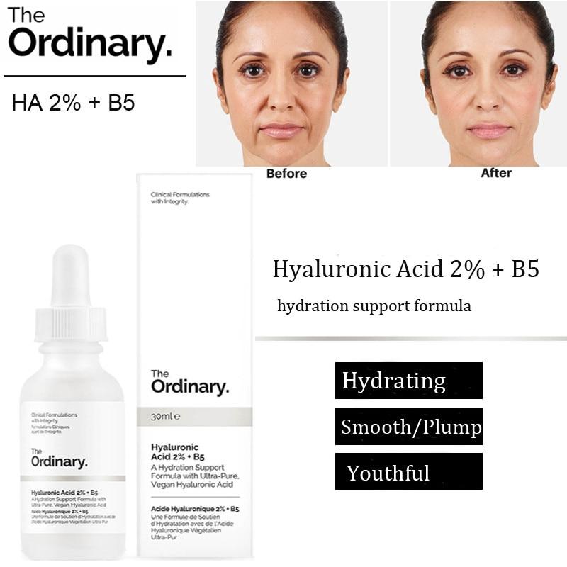 The Ordinary Hyaluronic Acid 2 B5 Hydration Skin Moisturizing Support Formula Plump Smooth Serum Shopee Indonesia