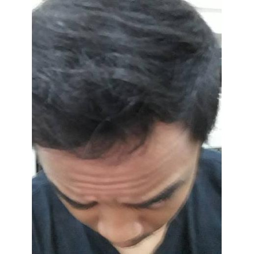 Kirkland Minoxidil 5 Finasteride 1 Mg Kebotakan Rambut Botak Dht Turunan Pitak Shopee Indonesia
