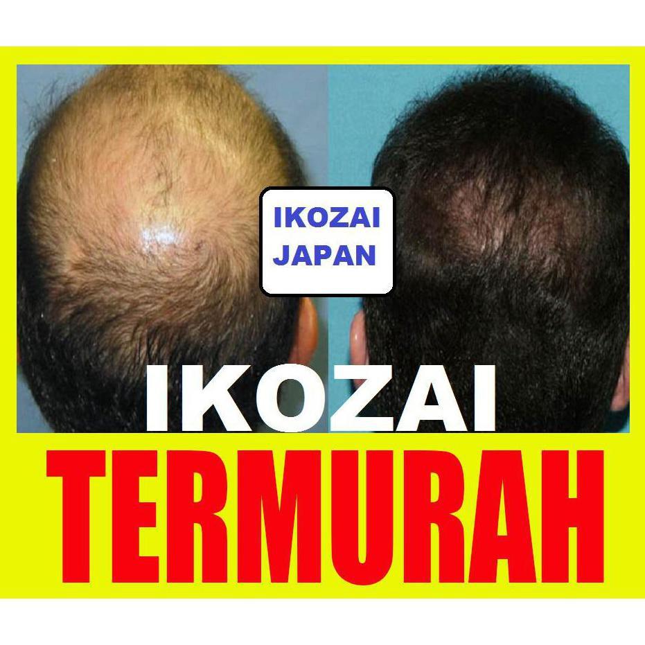 Promo Penumbuh Rambut Pure Castor Oil 1 Liter Minyak Jarak Murni L Shopee Indonesia