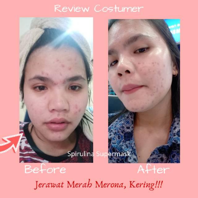Review Masker Spirulina Untuk Bekas Jerawat Merah