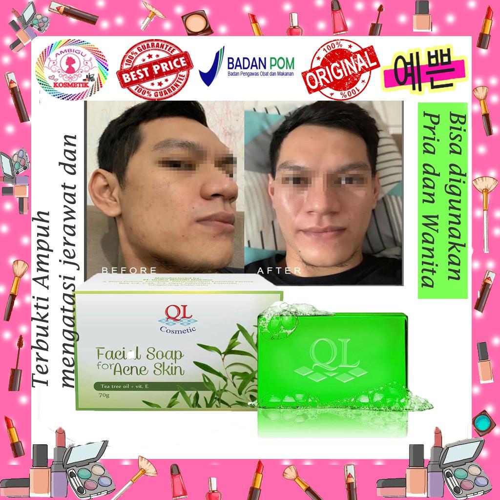 Original Ql Acne Soap Warna Hijau Sabun Untuk Kulit Berjerawat Sabun Acne Pria Dan Wanita Ampuh Shopee Indonesia