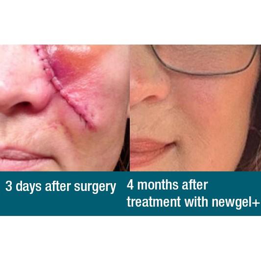 Piercing mederma scars for Mederma for
