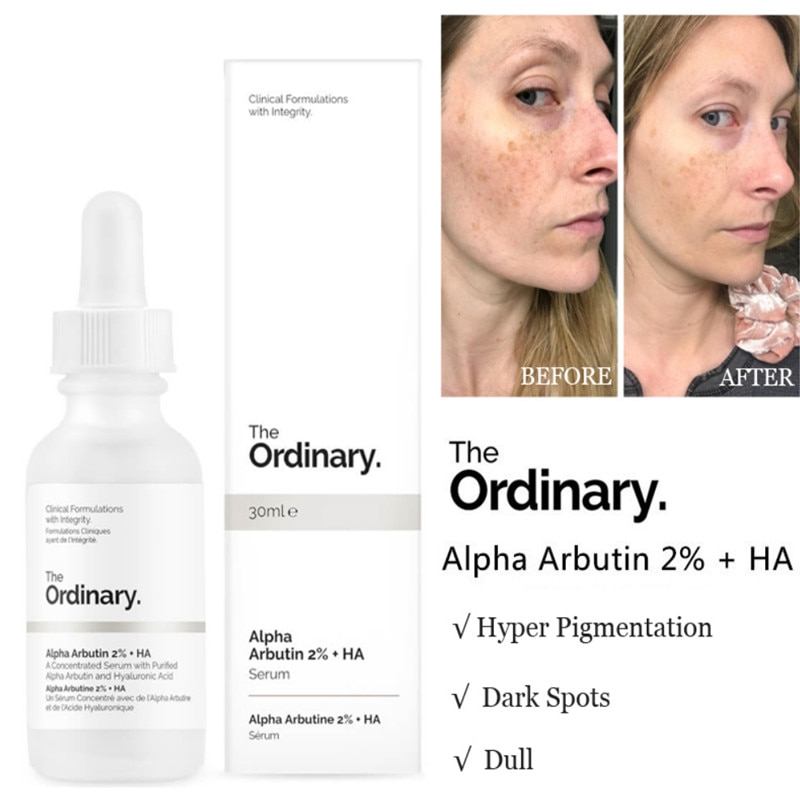 The Ordinary Alpha Arbutin 2 Ha 30ml Concentrated Whitening Face Serum Shopee Indonesia